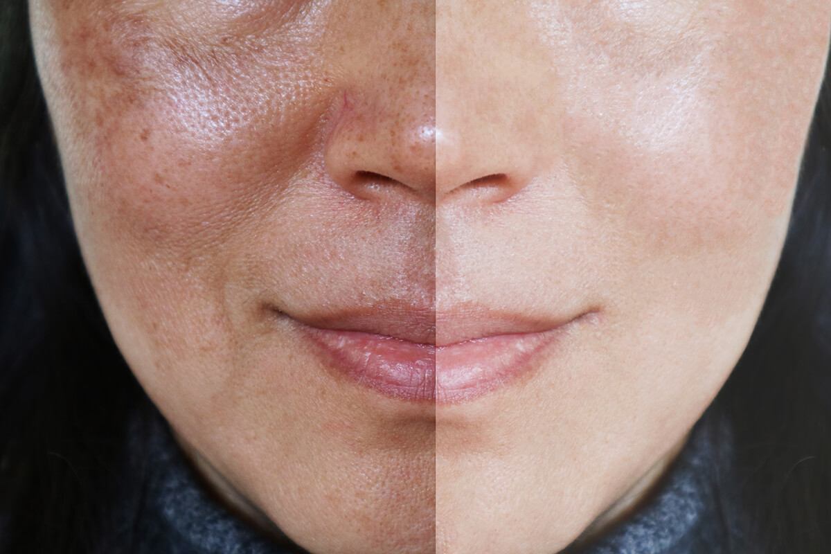 IPL Photo-Facial Skin Treatments from Divine Laser Studio in Denver